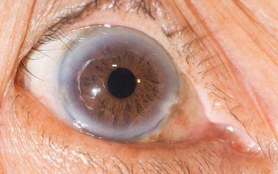 Image of arcus senilis in a brown eye