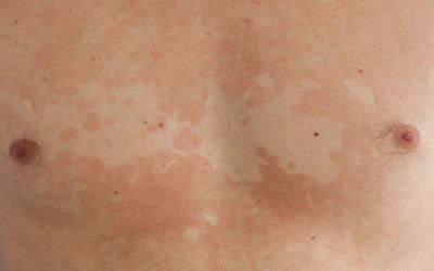 Overview of Tinea Versicolor Fungal Infection