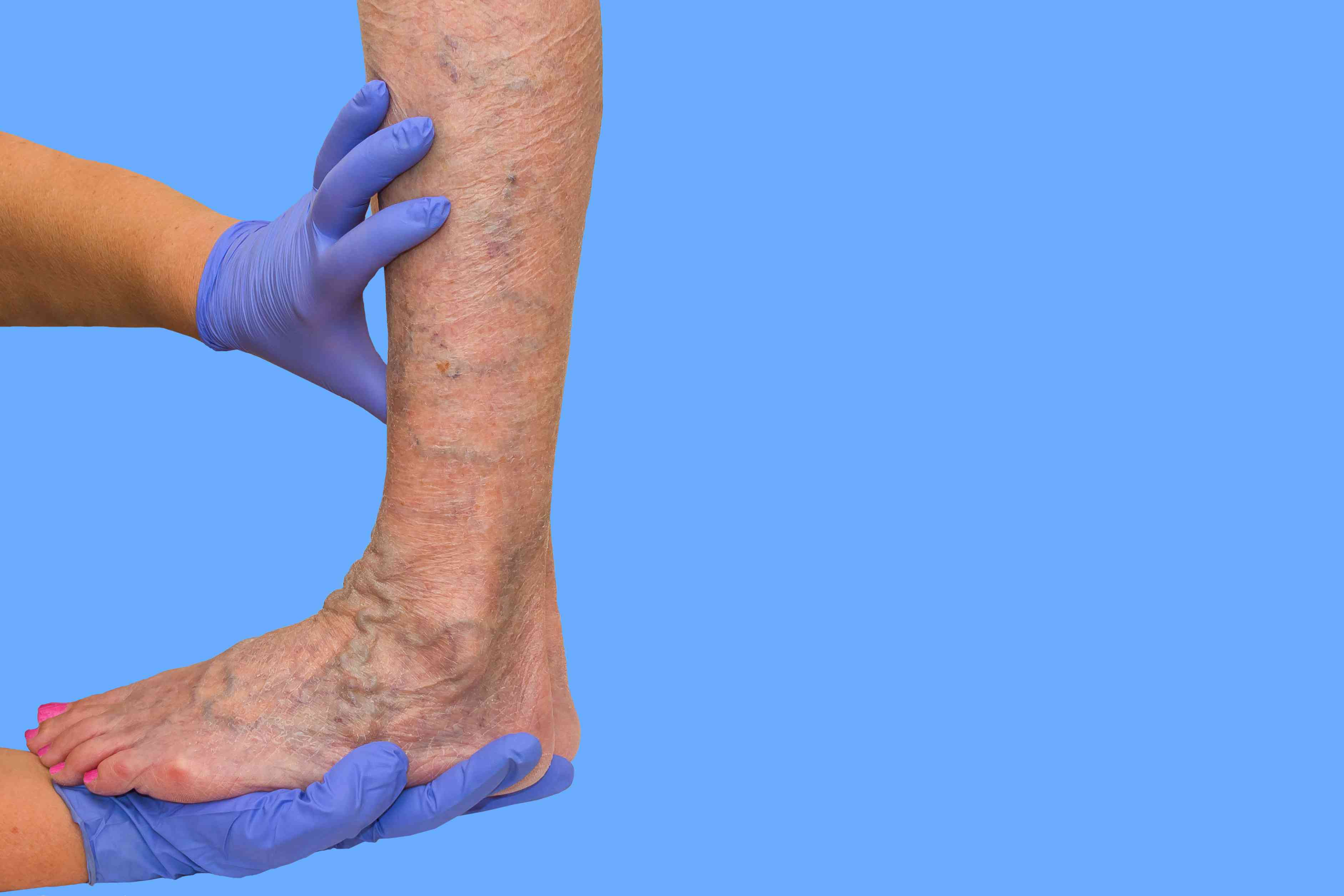 Lower limb vascular examination because suspect of venous insufficiency