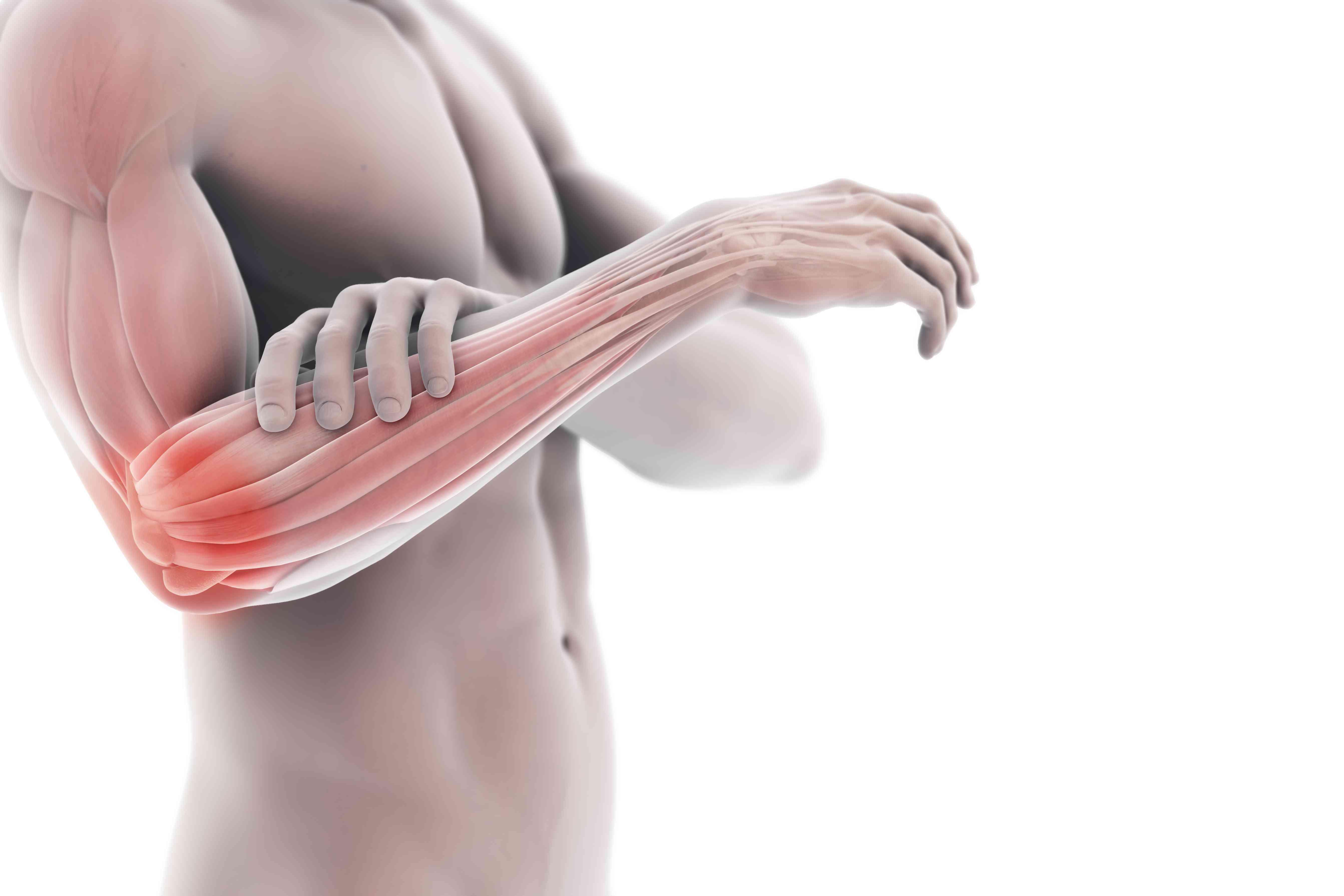 Illustration showing tennis elbow