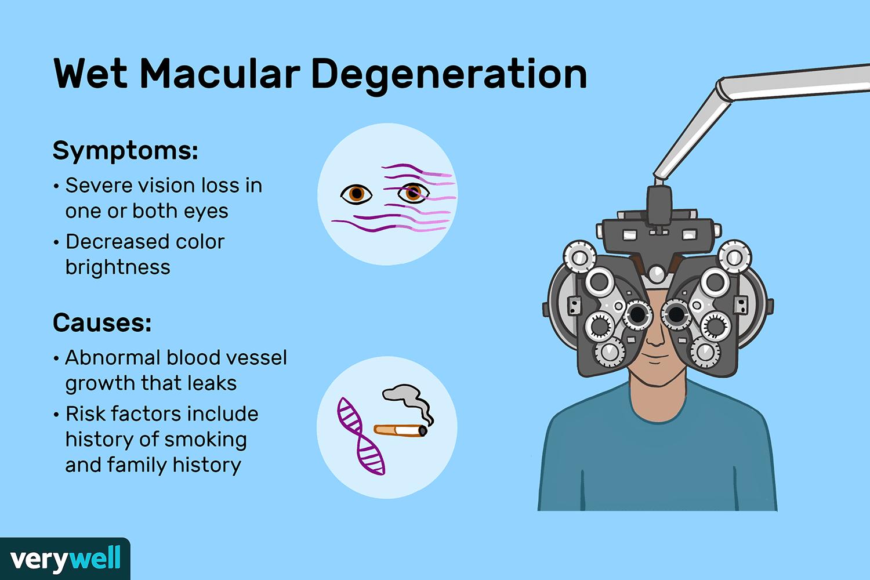 macular degeneration symptoms