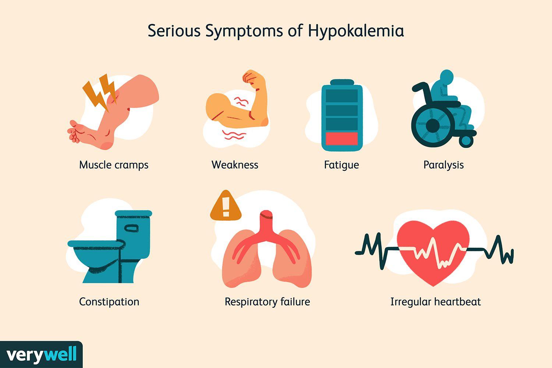 Serious Symptoms of Hypokalemia