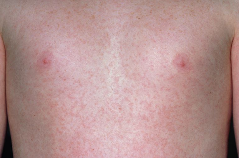 Child with German measles rash