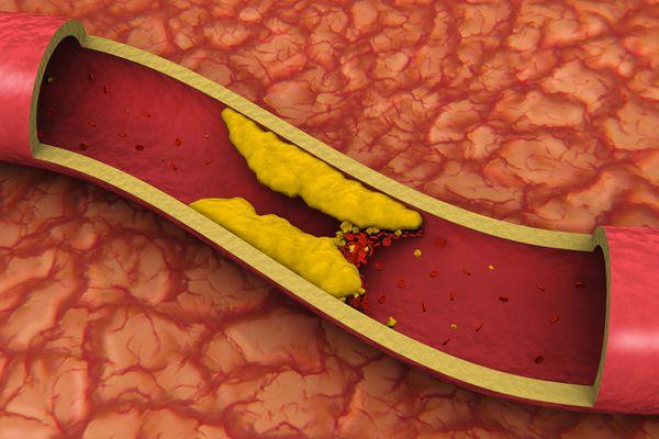 cholesterol clogging artery