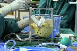 Medical staff prepares Carmat's Aeson total artificial heart