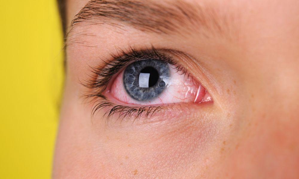 Sympathetic ophthalmia