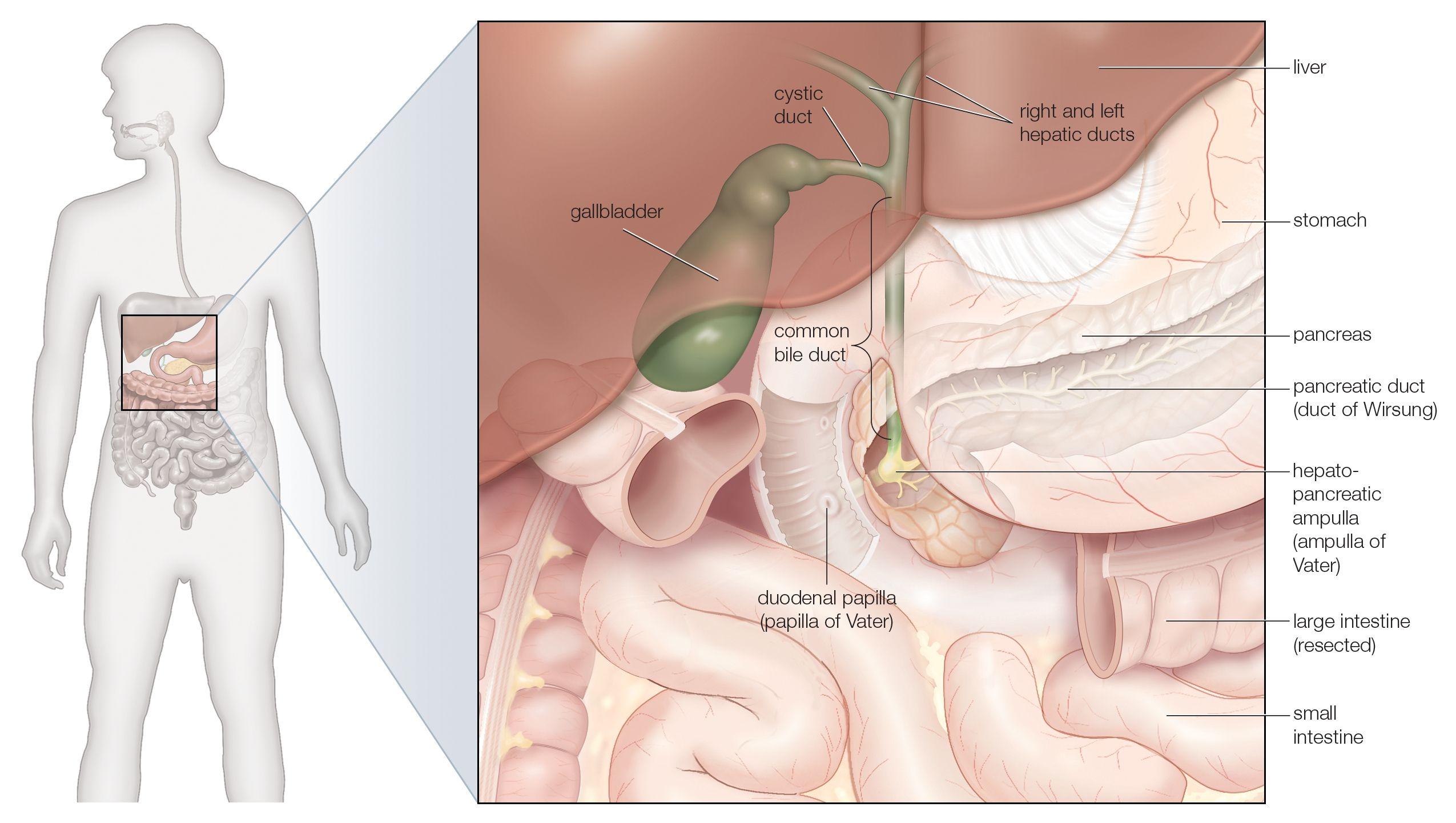 Understanding Gallstones And Gallbladder Disease