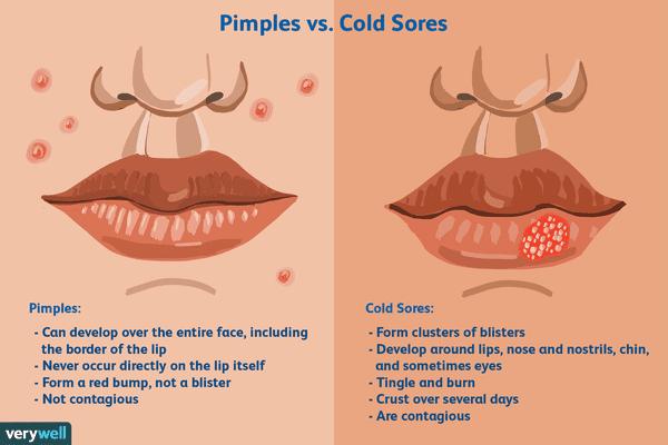 Cold Sores vs. Pimples