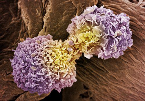 Breast cancer cells, SEM