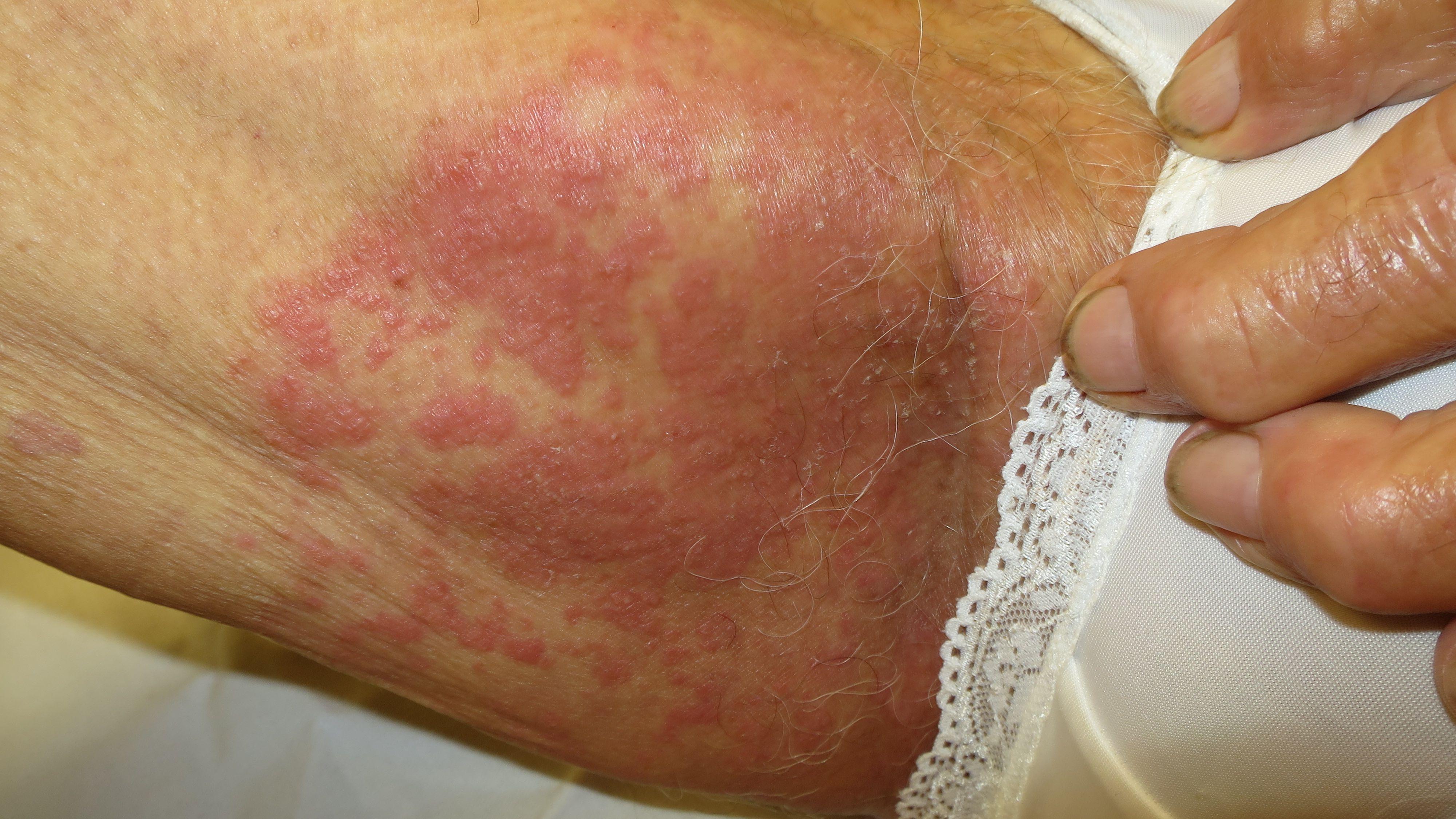 Symptoms Causes And Treatment Of Intertrigo
