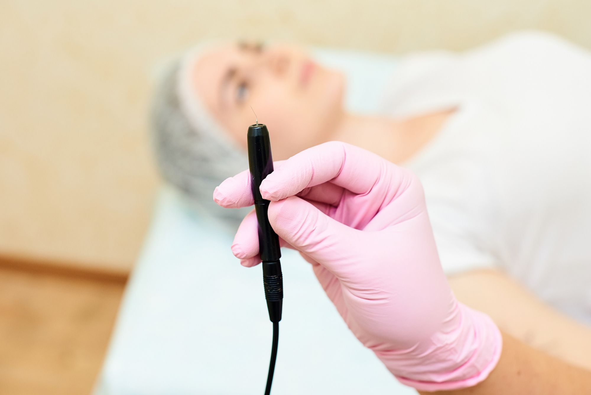 Permanent Hair Removal for Women With PCOS