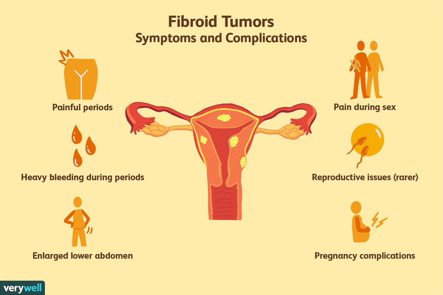 What You Need to Know About Uterine Fibroid Tumors