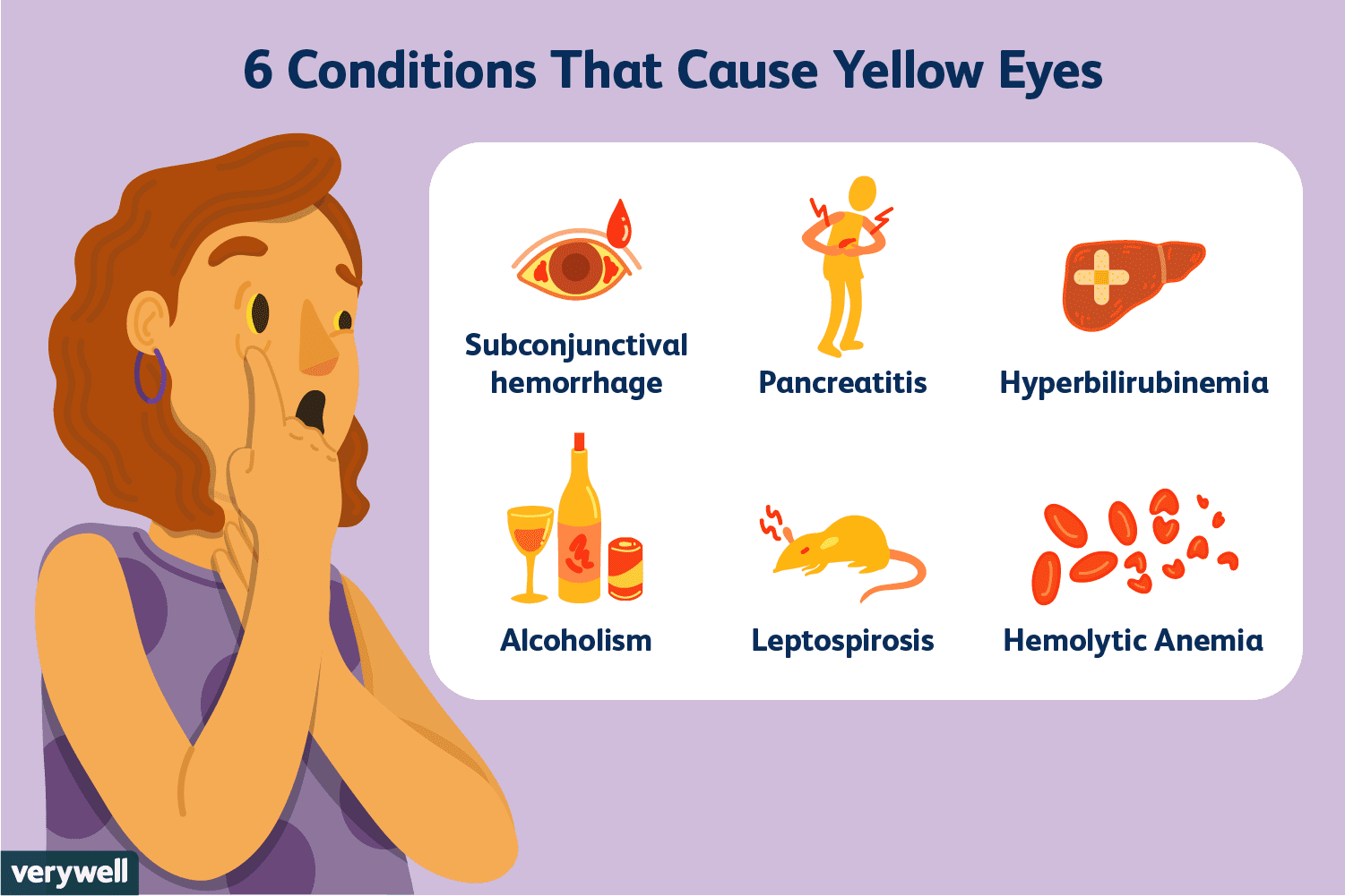 Causes and Conditions of Yellow Eyes