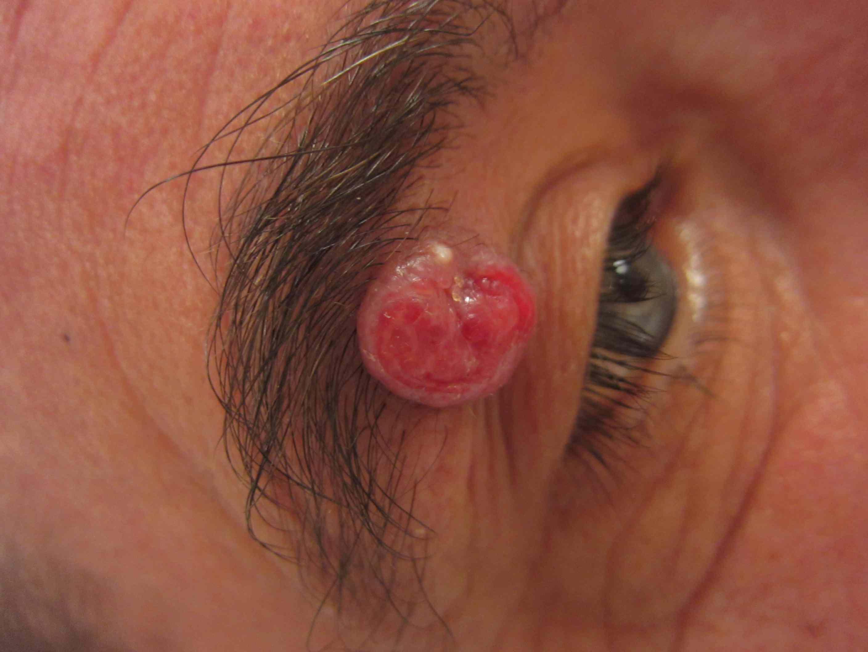 Kaposi sarcoma above eye