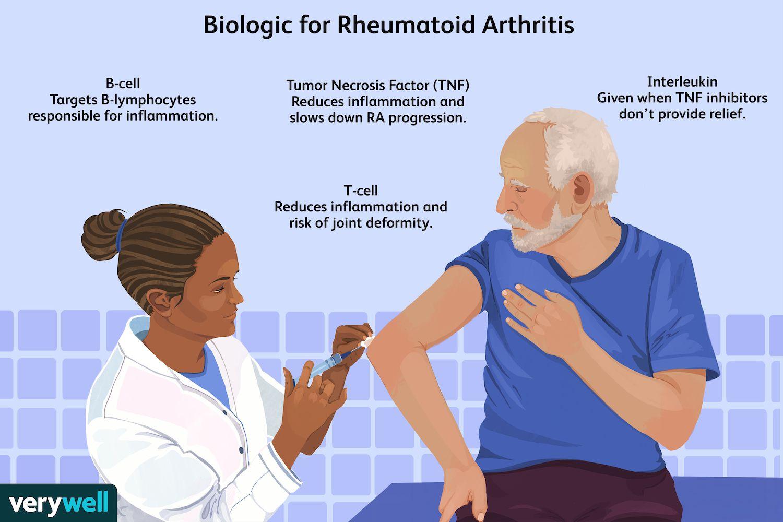 Biologic for Rheumatoid Arthritis