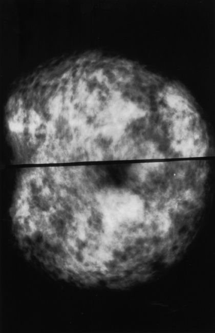 Normal Dense Breast Tissue