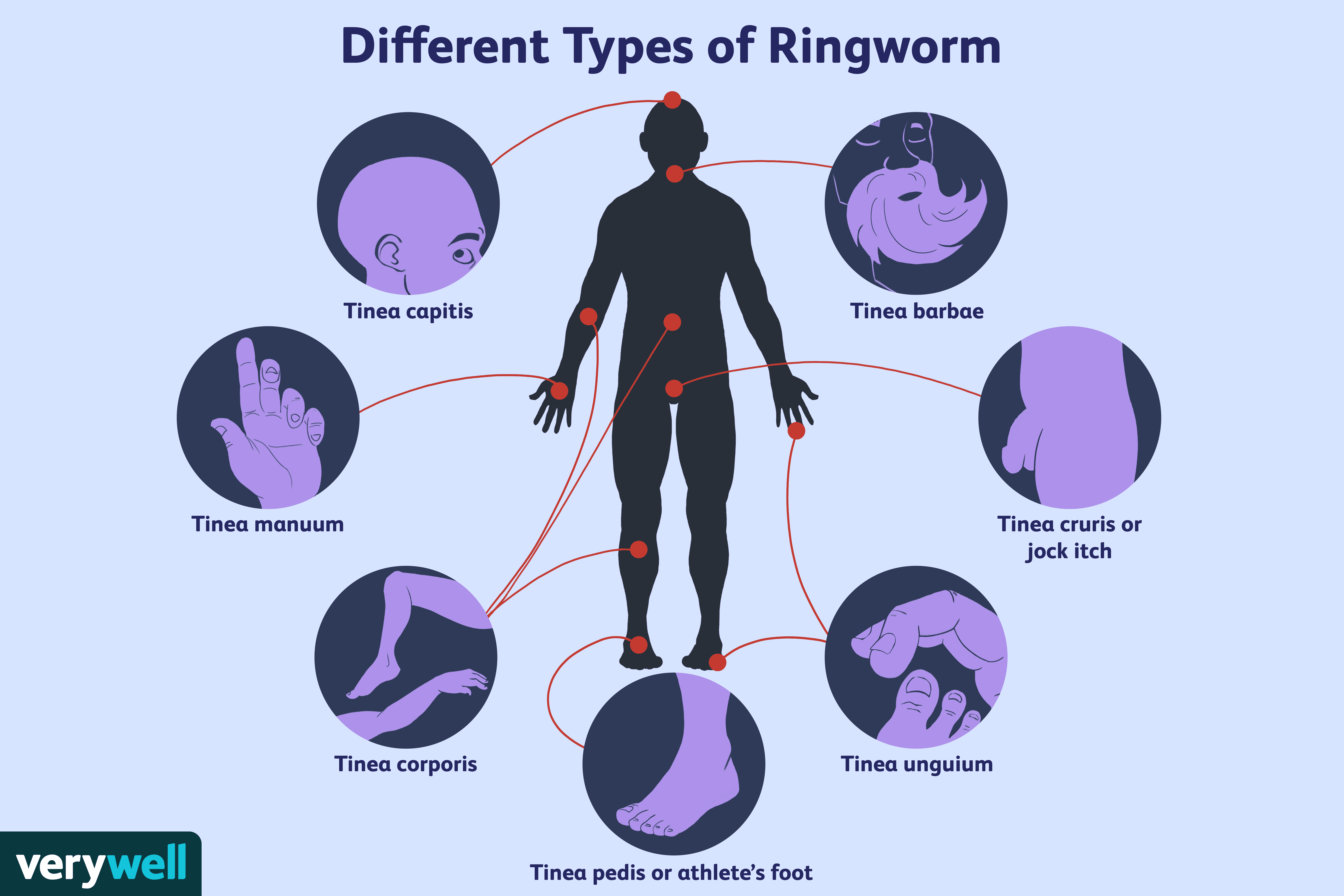 Different Types of Ringworm