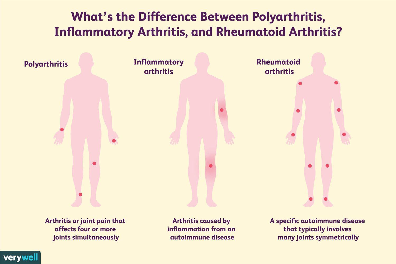 Comparison of polyarthritis, inflammatory arthritis, and rheumatoid arthritis.