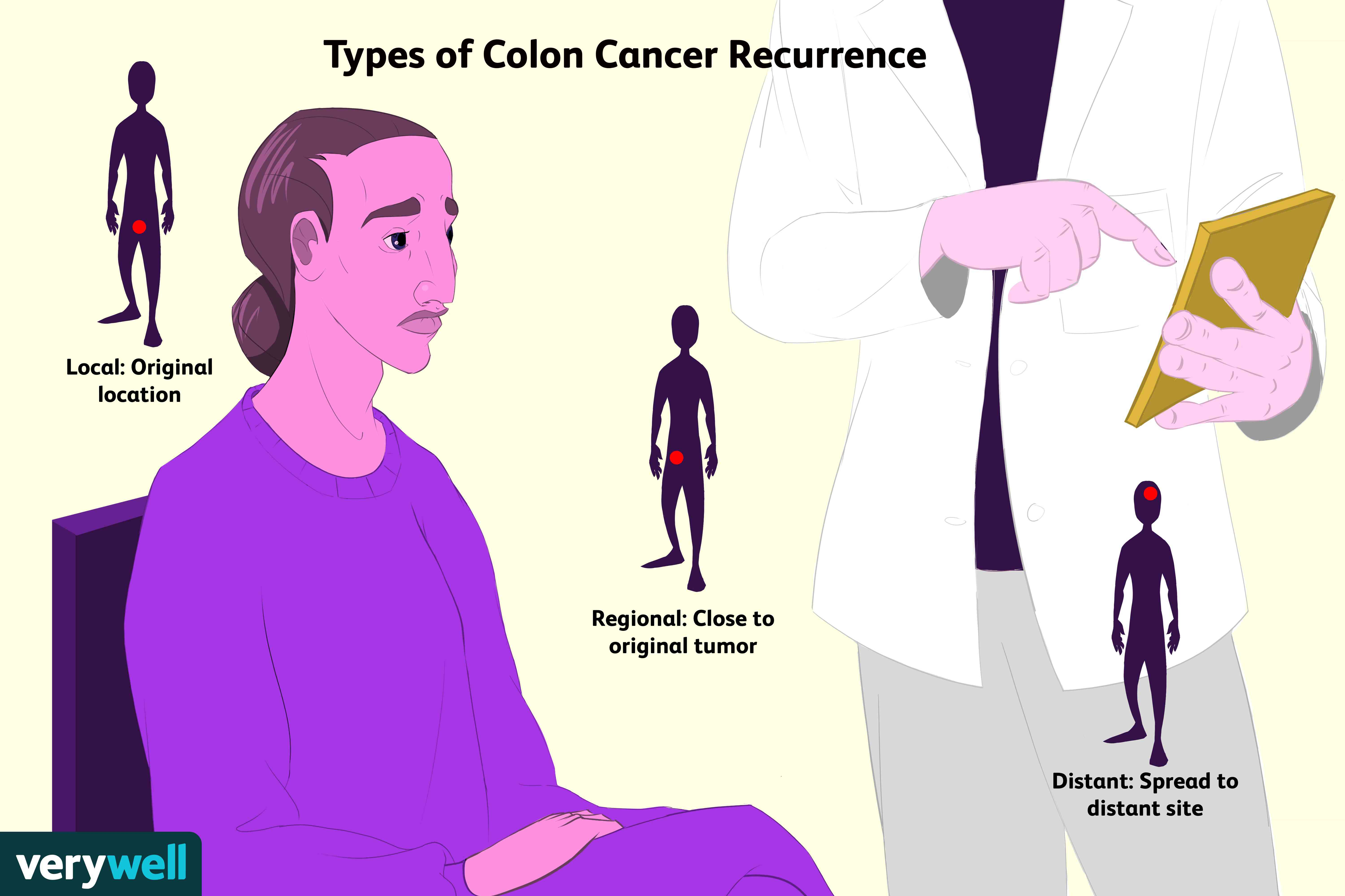 Rectal cancer recurrence