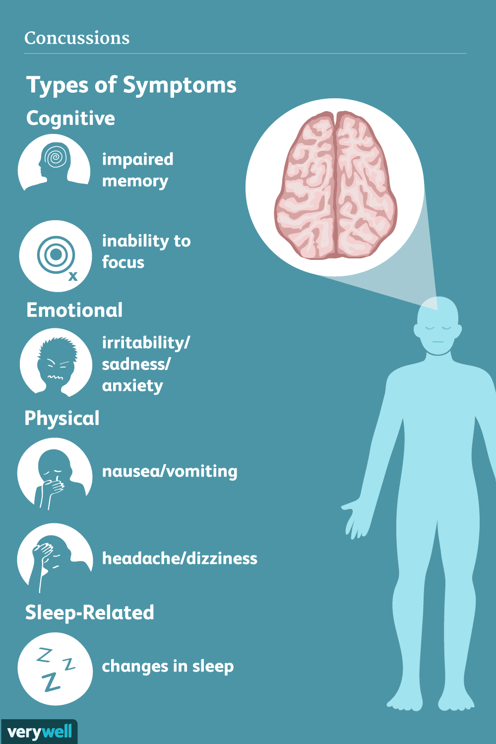 Concussion: Signs, Symptoms, and Complications