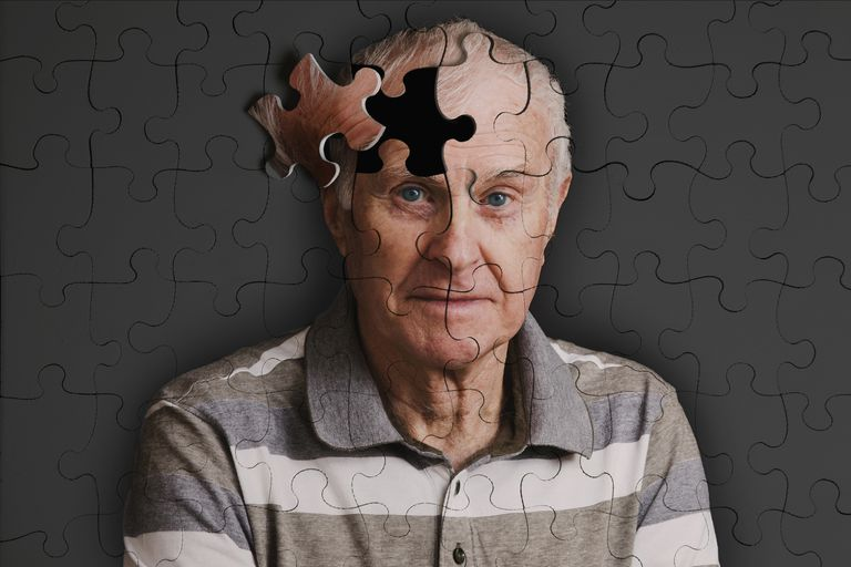 man with dementia