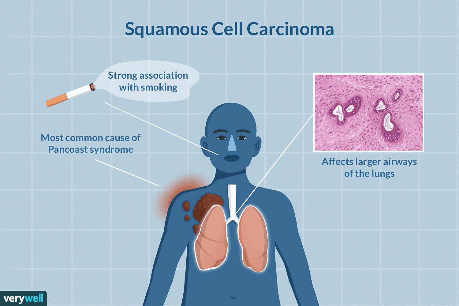 Squamous Cell Carcinoma Of The Lungs Symptoms And Treatment