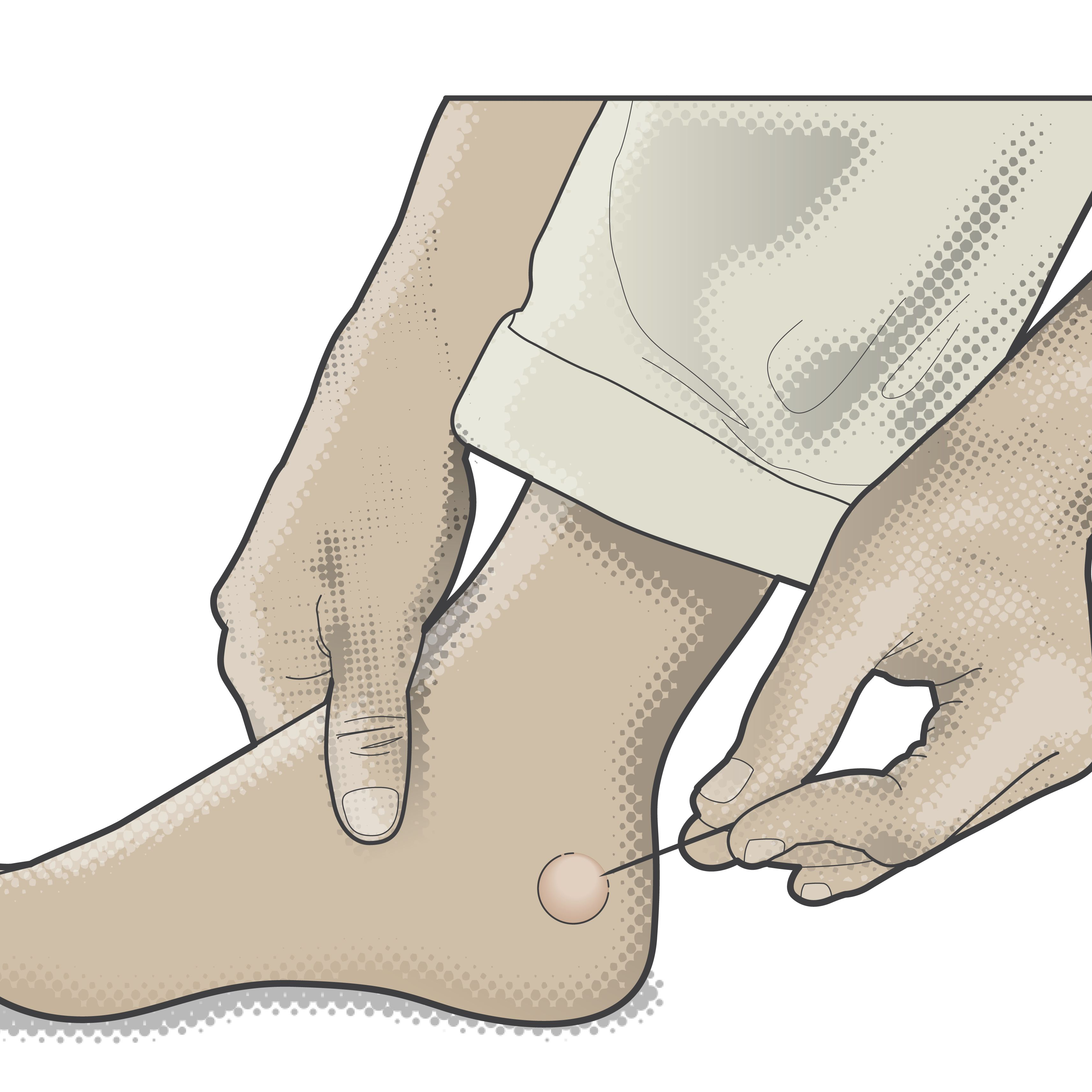 9 Common Rashes With Blisters
