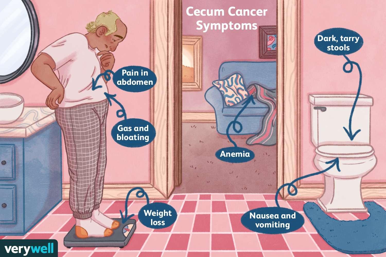 Cancer colon gases. Cancer colon gases. Cancer de colon y gases - expert-evaluator-de-risc.ro