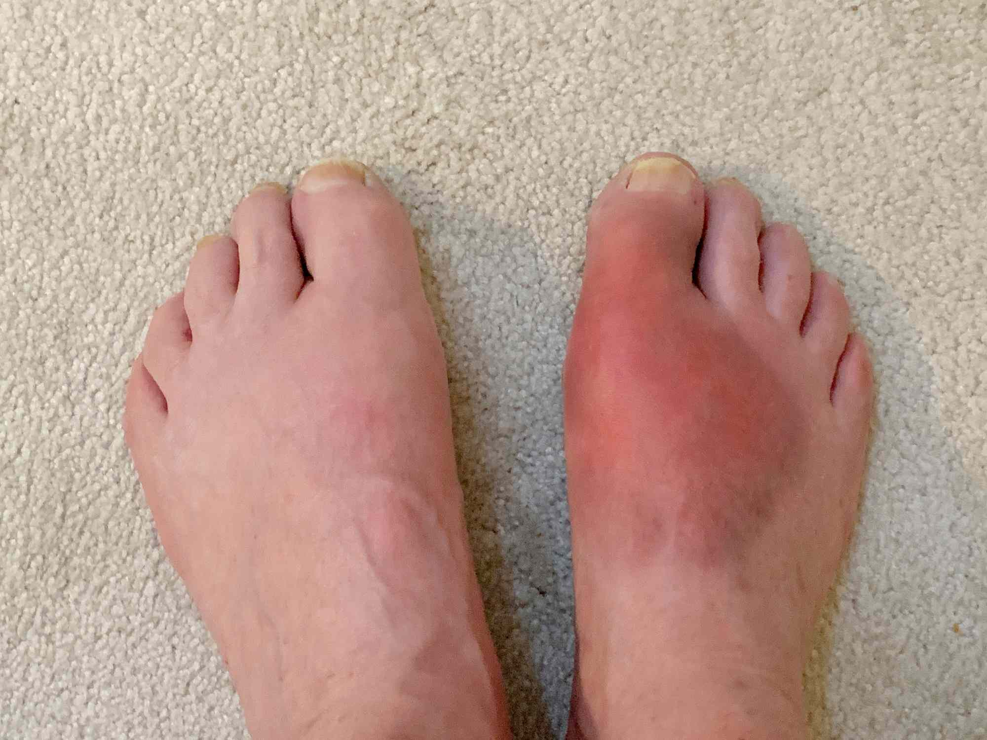 Gout in the big toe and foot