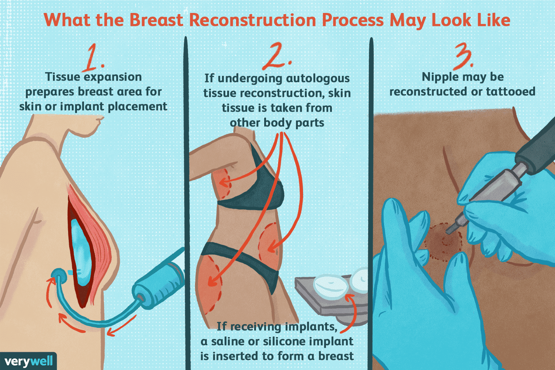 breast reconstruction process