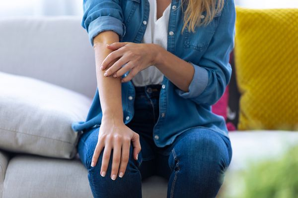 Young woman scratching her arm while sitting on the sofa at home.