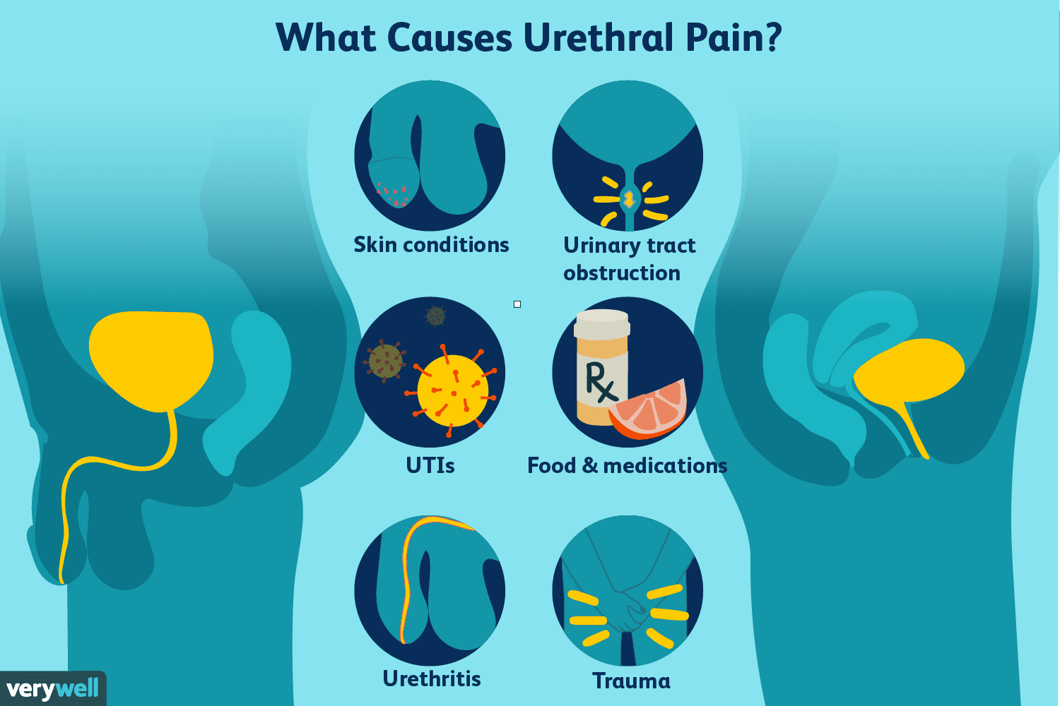 What causes urethral pain?