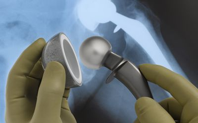 X-ray of hip replacement; surgeon hold prosthetic parts
