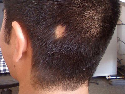 Alopeica Areata a bald spot on head or scalp. loss of hair from stress