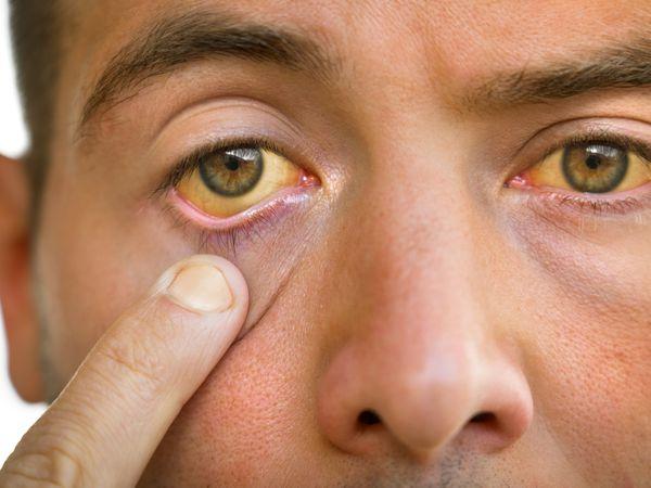 Man with jaundice, a symptom of hepatitis