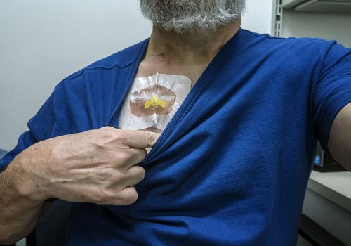 A man shows the chemo port on his chest