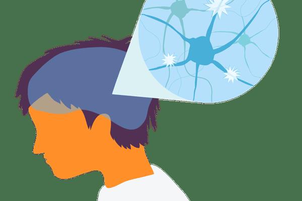 Multiple Sclerosis - Man's brain nerves