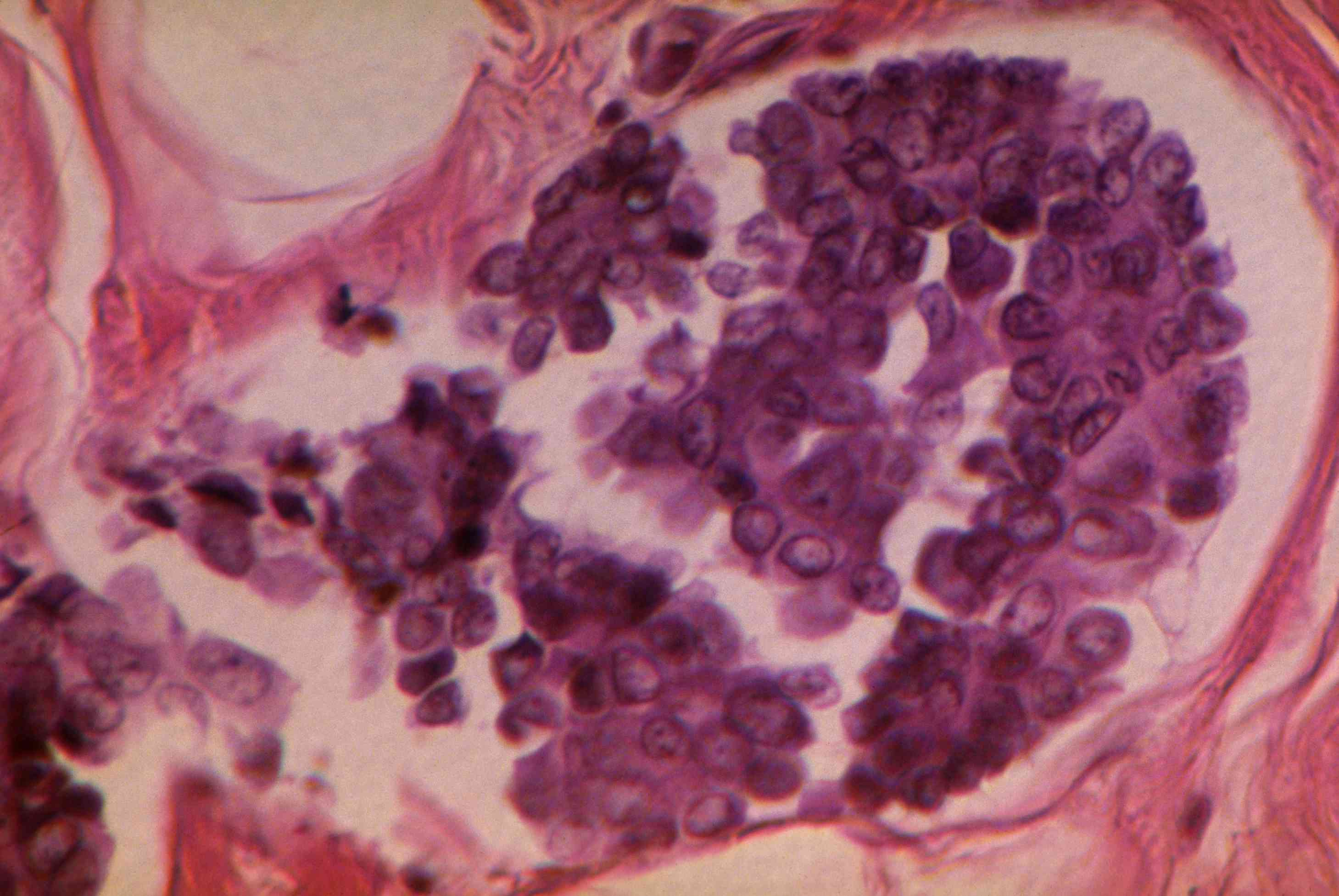 Breast cancer. Magnification 150X.
