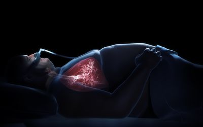 Obstructive sleep apnea contributes to obesity hypoventilation syndrome by increasing carbon dioxide levels in sleep