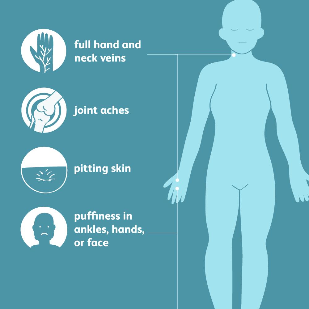 Common symptoms of edema