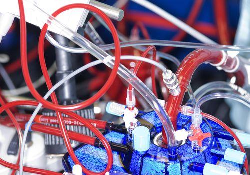 Heart-lung machine