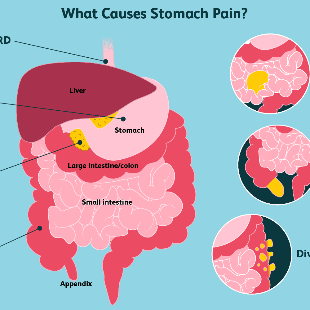 Stomach Pain: Causes, Treatment, and When to See a Doctor