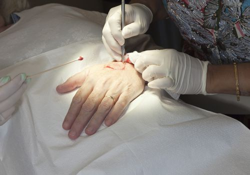 a dermatologist performs Mohs surgery on the back of a patient's hand
