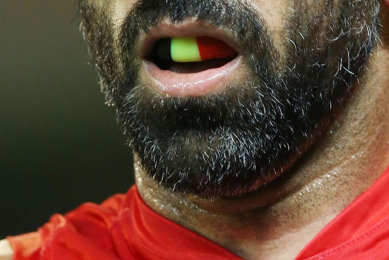 close up of man's mouthguard