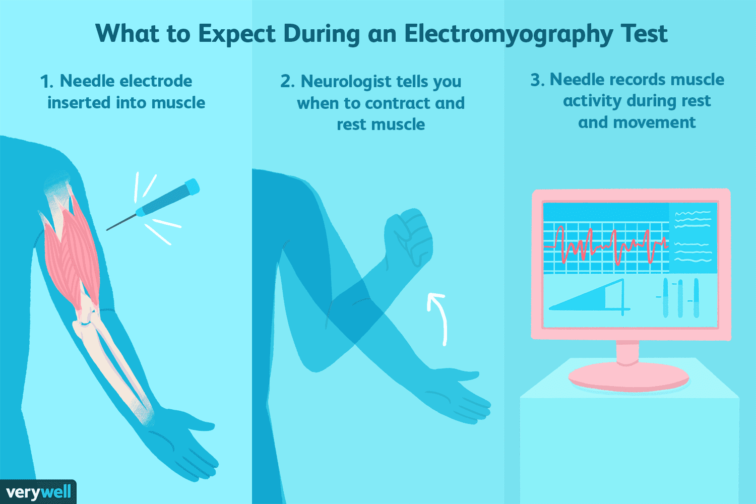 Electromyography Uses, Side Effects, Procedure, Results