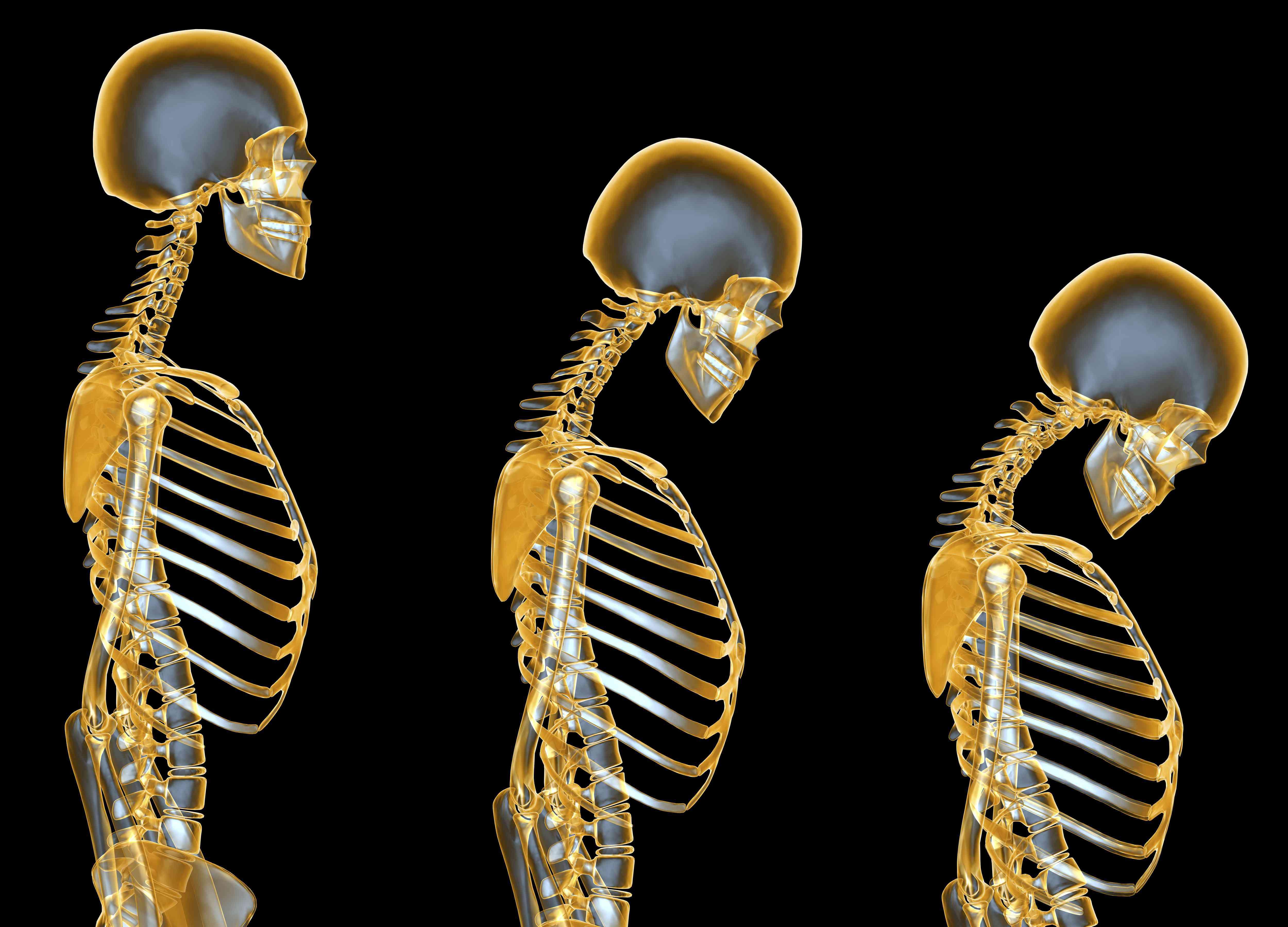 X-ray illustration of Osteoporosis progression