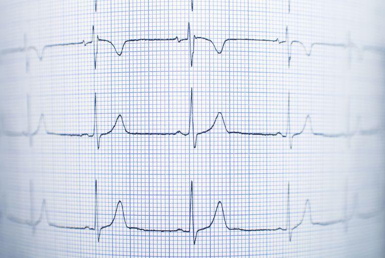 Healthy electrocardiogram