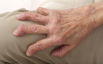Ranní ztuhlost kloubů příčiny a léčba .