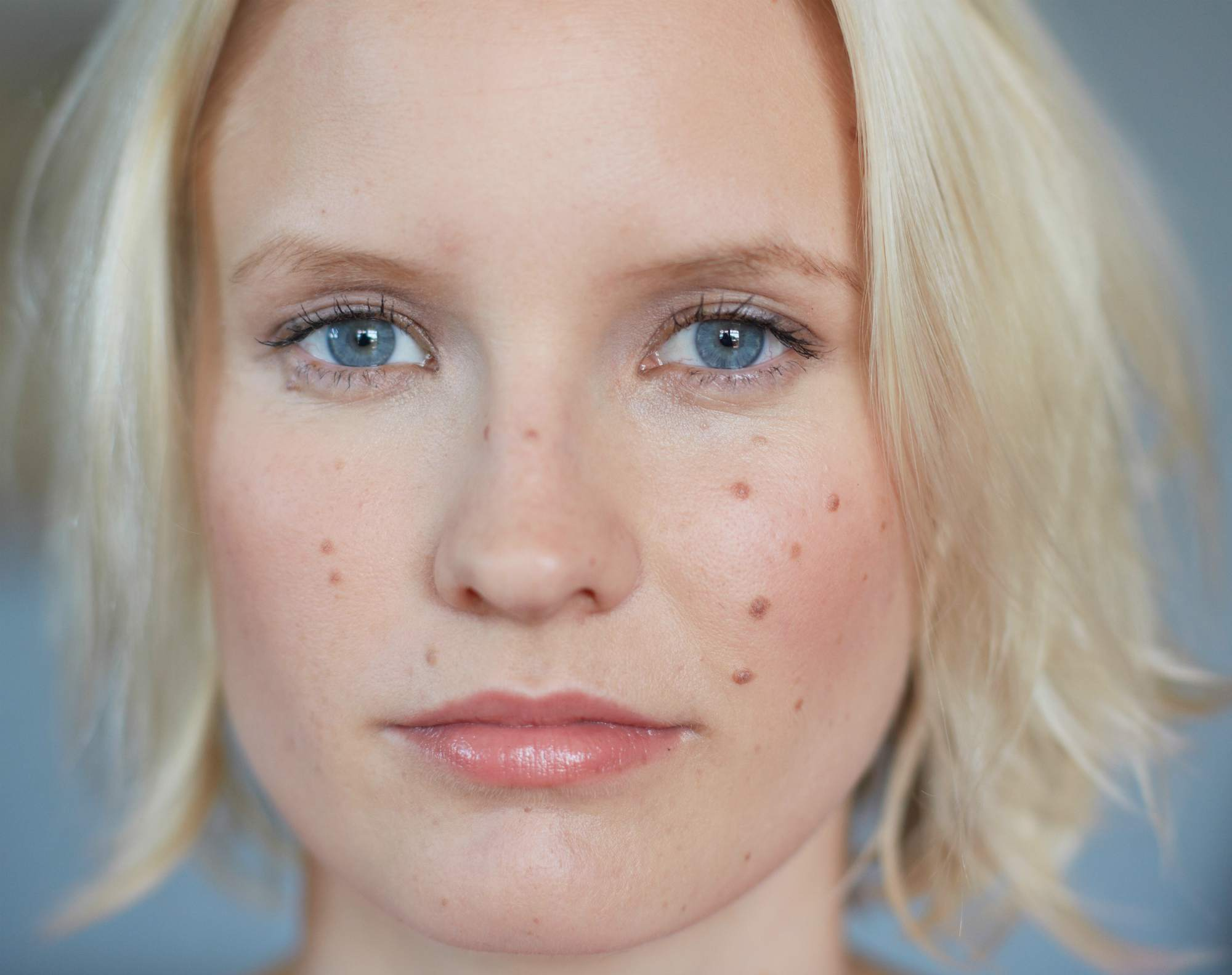 5 Tips For Itchy Dry Skin Due To Pcos