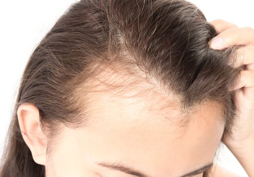 Young woman with hair loss.